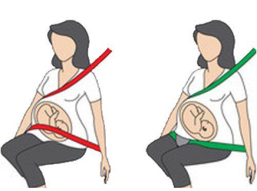 cintura sicurezza gravidanza