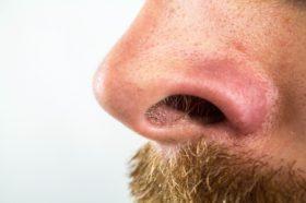 peli nel naso fastidioso