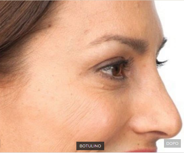 esempi botox dopo puntura