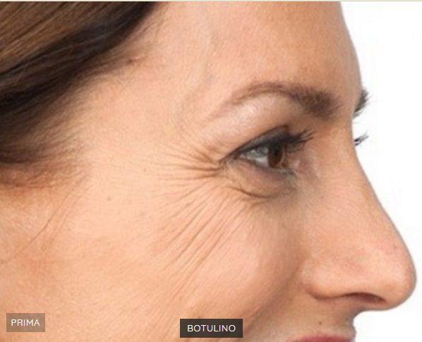 light botox trattamento prim e dopo