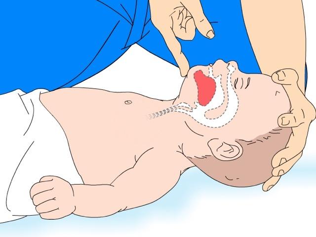 posizione per non soffocare nel bambino
