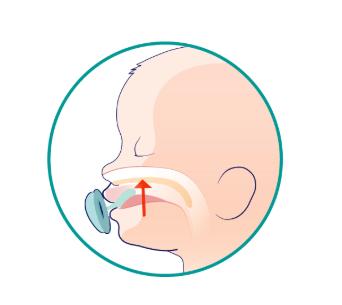 ciuccio danni denti