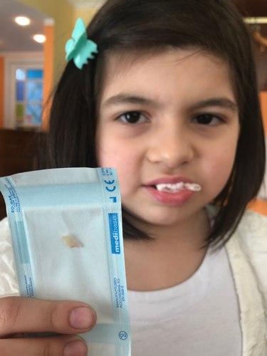 perso il suo primo dentino da latte