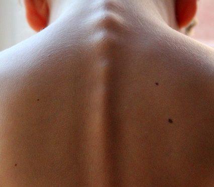 bambino con colonna vertebrale storta