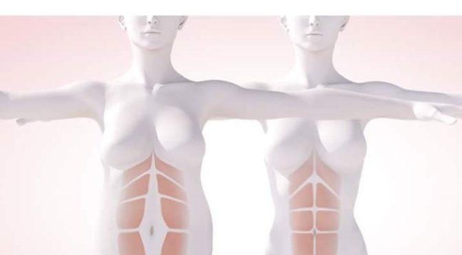 diastasi gravidanza