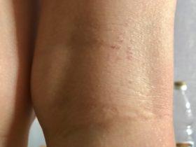 pelle dermatite bambina